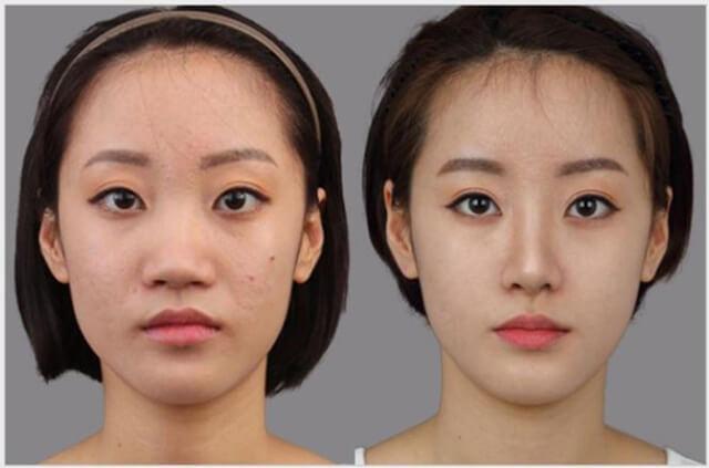 Hàn Quốc còn được mệnh danh là đất nước dao kéo vì có nhiều người sử dụng phẩu thuật thẩm mỹ để thay đổi ngoại hình